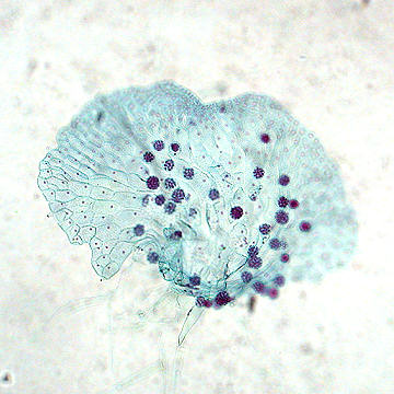 Fern prothallus with antheridia