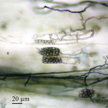 Dark septate hyphae and miscrosclerotia